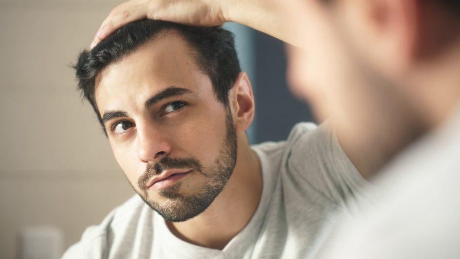 Problème d'alopécie ? Créer l'illusion avant l'été avec la tricopigmentation