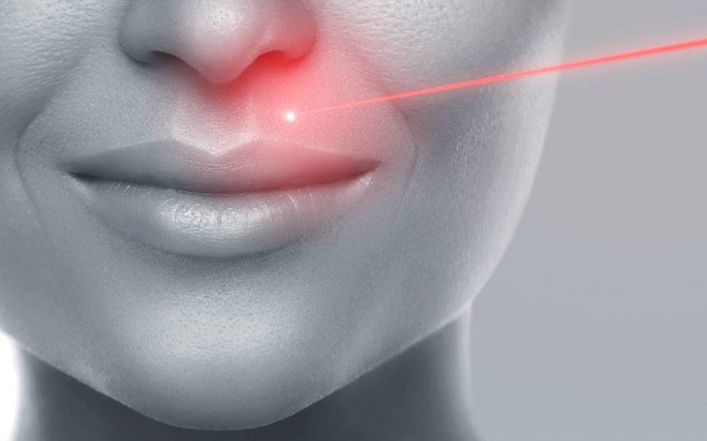 Technique au laser