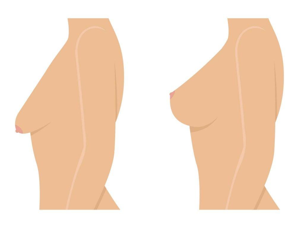 Affaissement des seins à cause de l'allaitement