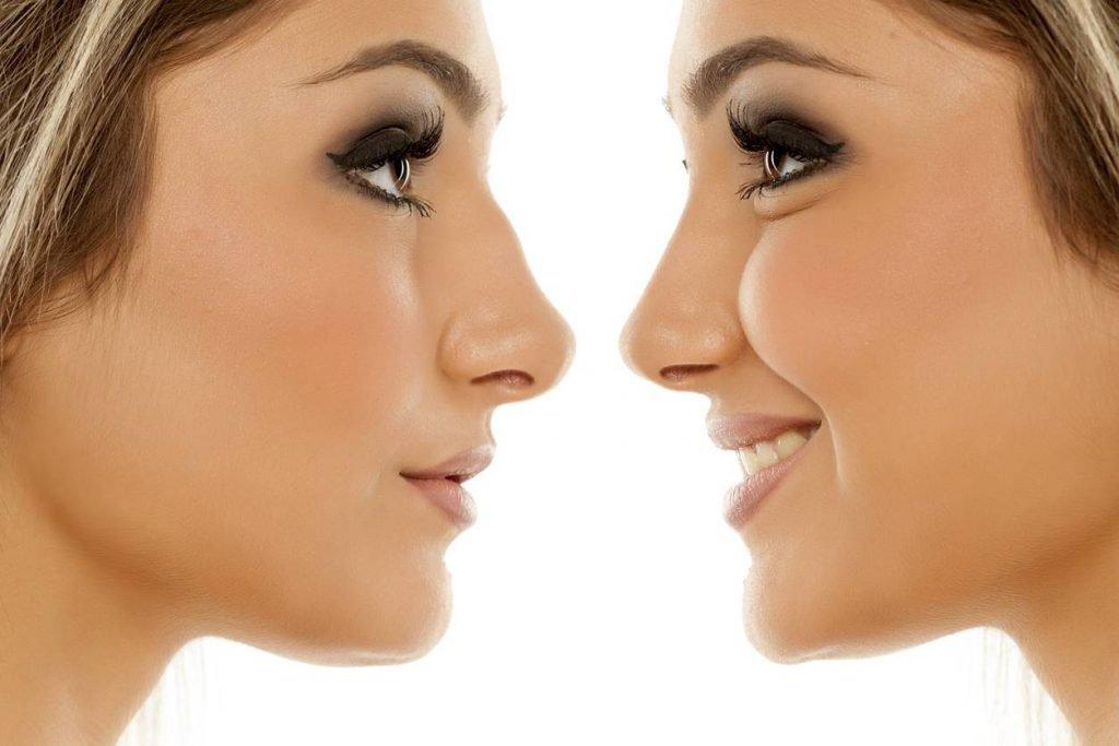 Les différentes techniques de rhinoplastie