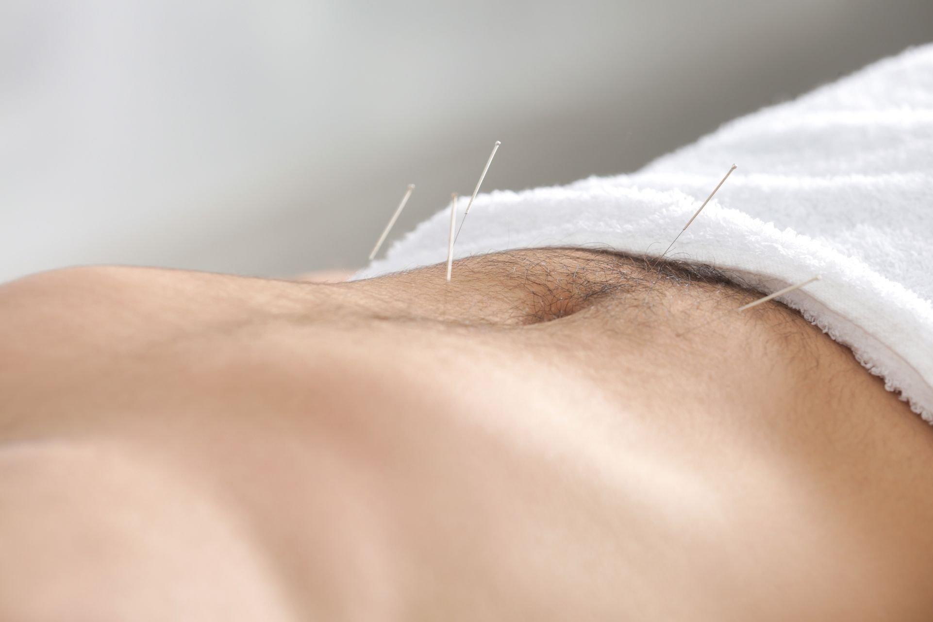 Utiliser l'acupuncture pour le sevrage tabagique